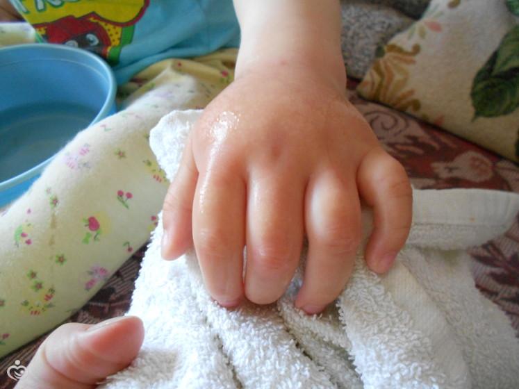 аллергическая реакция на шерсть животных у детей